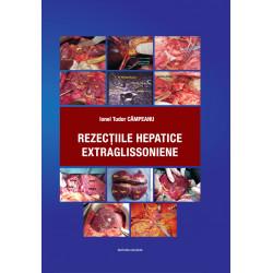 Rezecțiile hepatice extraglissoniene